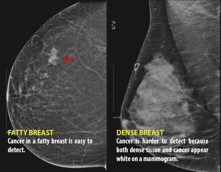 Dense breasts without red circle